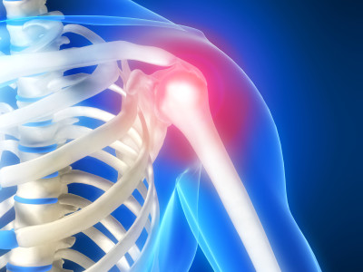 3d rendered illustration of a human shoulder with pain